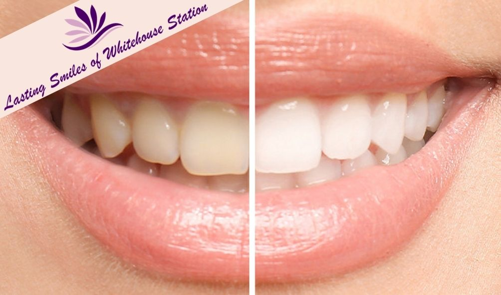 Expert Teeth Whitening in Whitehouse Station