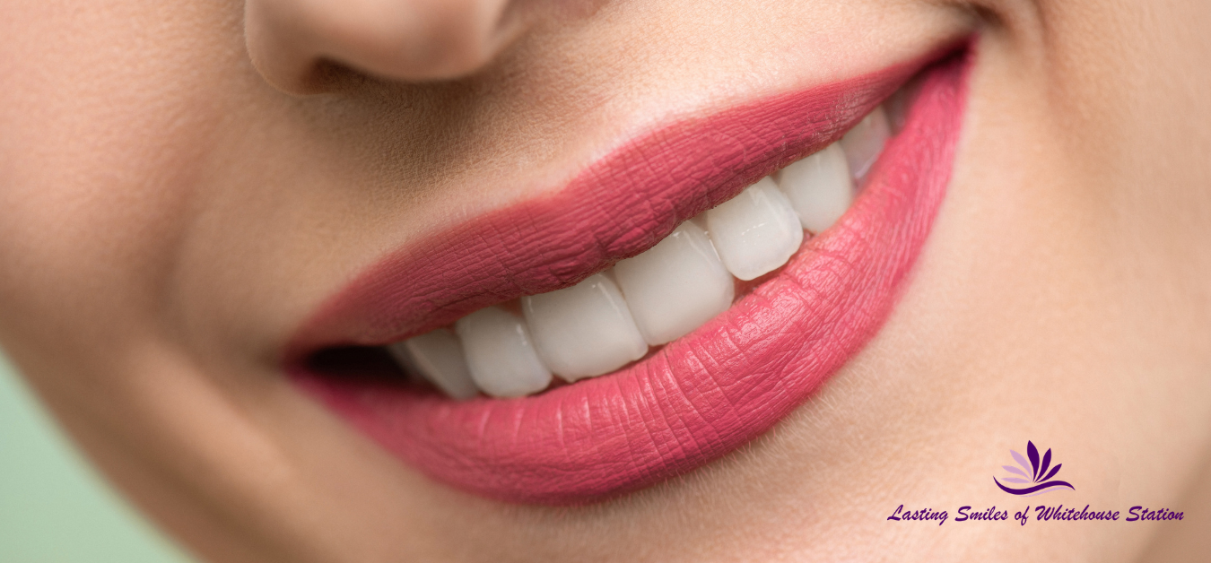 Lasting smiles of Whitehouse station dental clinic teeth whitening