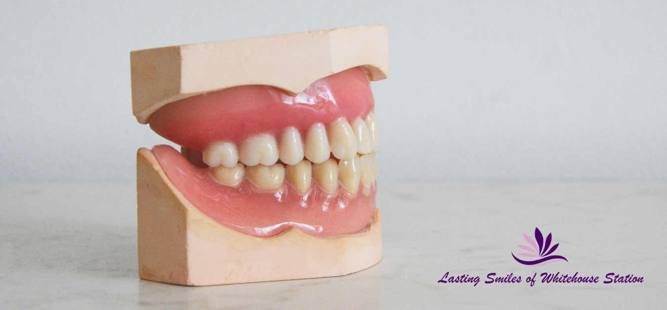 Lasting smiles of Whitehouse station dental clinic Dentures